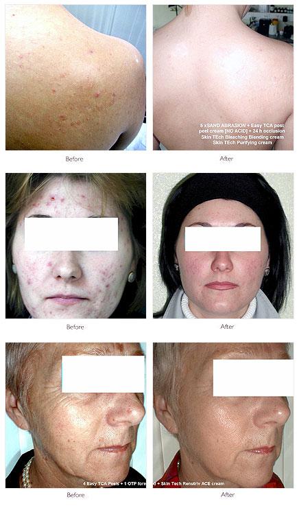 facial rejuvenation clinics laser peels uk