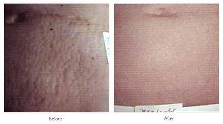 Botox Laser Hair Removal Mole Removal Fillers In Kent Uk